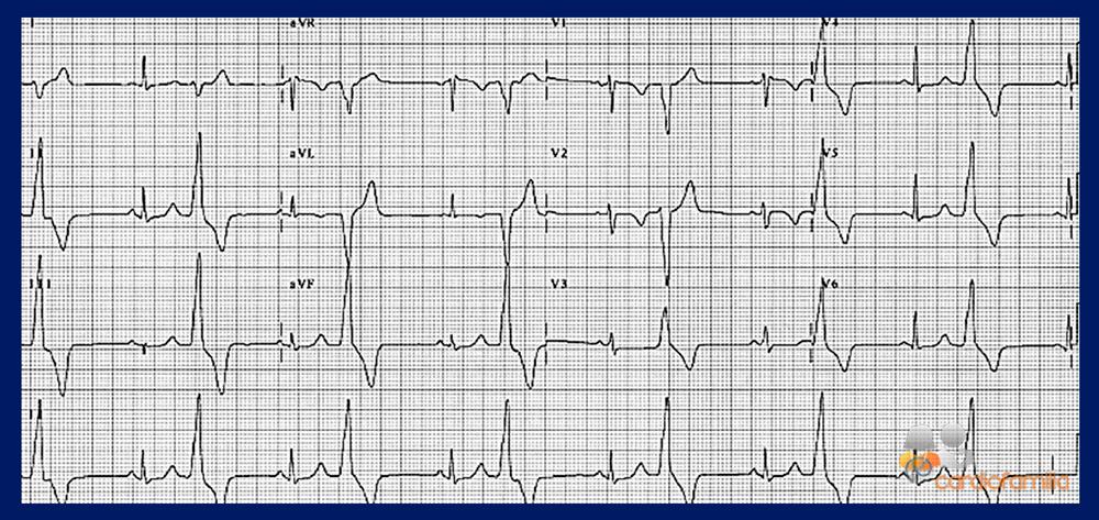 cardiofamilia ecg ed6 febrero2018