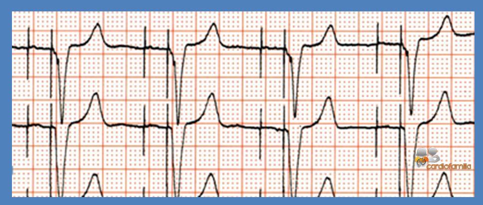 ECG ED17 Cardiofamilia