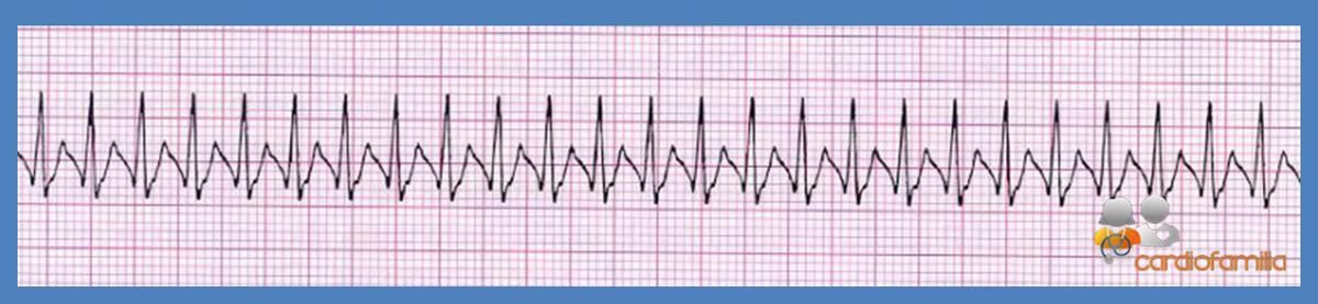 cardiofamilia 02.08.2017 ECG19
