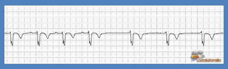 cardiofamilia 13.07.2017 ECG18