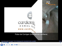 videos imagenescoment www.cardiofamilia.org