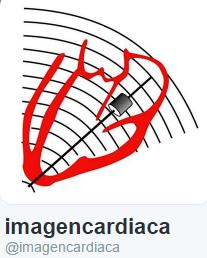 imagen cardiaca