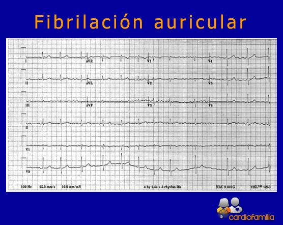 ECG-fibrilacion-auricular-cardiofamilia.org