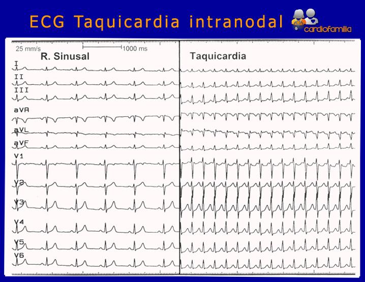 ECG-taquicardia-intranodal-ritmo-sinusal-versus-taquicardia-cardiologia-cardiofamilia