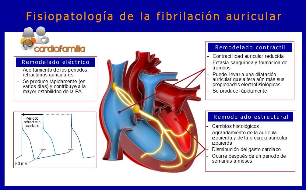 Fisiopatologia-de-la-fibrilacion-auricular-cardiologia-cardiofamilia