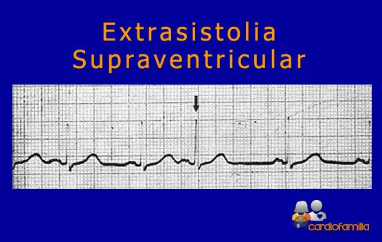 extrasistolia-supraventricular-cardiofamilia.org
