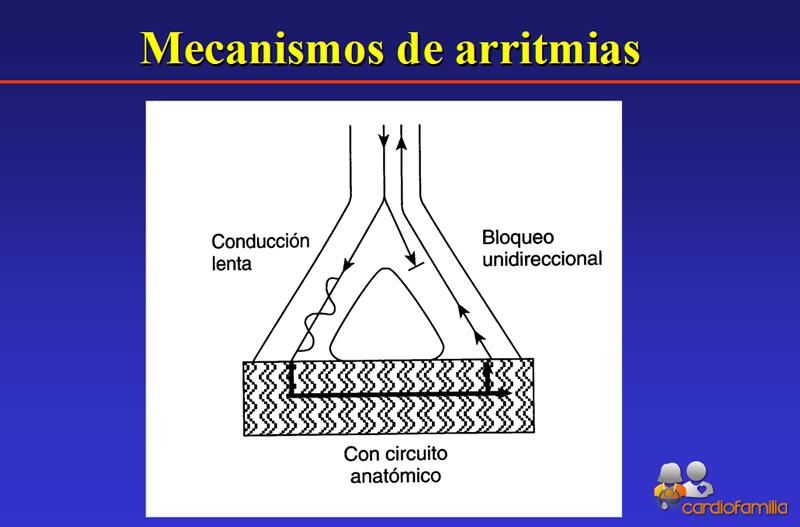 mecanismos-de-las-arritmias-con-circuito-anatomico-cardiofamilia