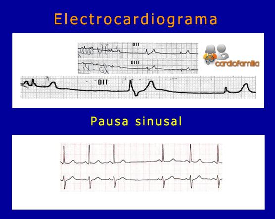 electrocardiograma-pausa-sinusal-seccion-bradiarritmias-cardiofamilia.org