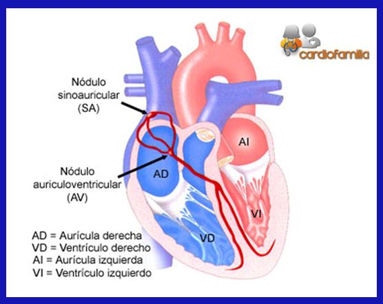 grafico-corazon-seccion-bradiarritmias-cardiofamilia.org
