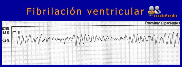ECG-fibrilacion-auricular-cardiologia-cardiofamilia