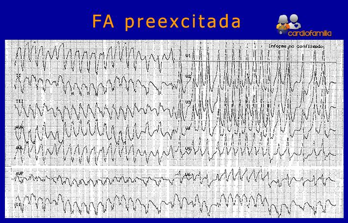 ECG-fibrilacion-auricular-preexcitada