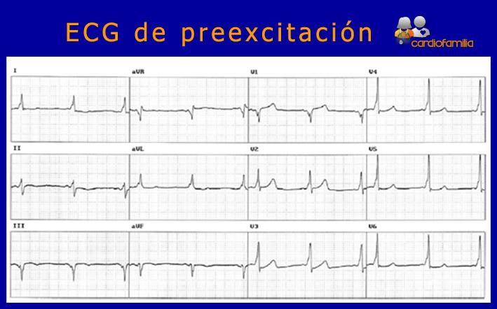 ECG-preexcitacion-V4-V5-onda-delta-y-PR-corto-cardiofamilia-cardiologia