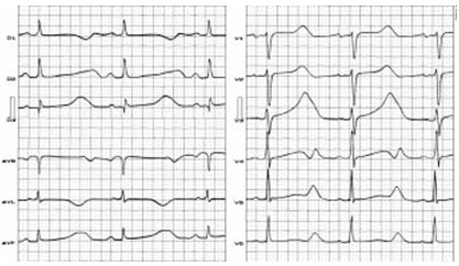 ECG-sindrome-QT-largo