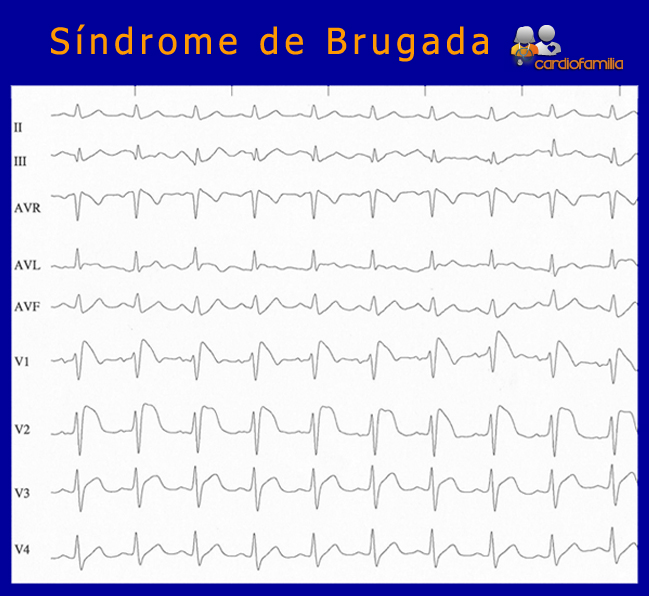 Sindrome-de-Brugada-ECG-cardiologia-cardiofamilia