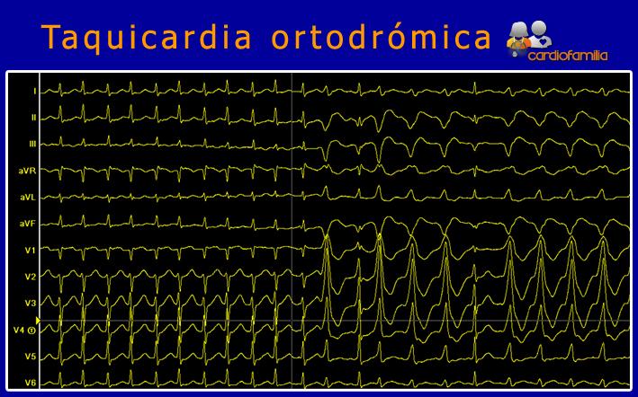 Taquicardia-ortodromica-cardiofamilia.org