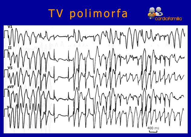 Taquicardia-ventricular-polimorfa-cardiologia-cardiofamilia