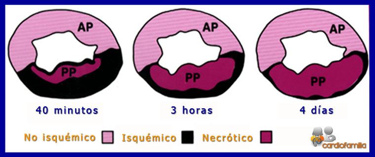 modelo experimental oclusion arteria coronaria www.cardiofamilia.org