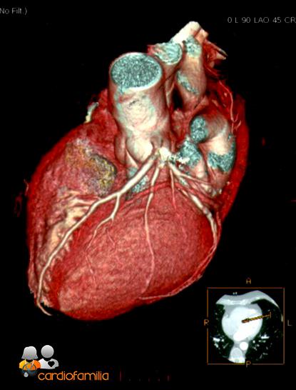 tomografia computerizada multicorte cardiofamilia