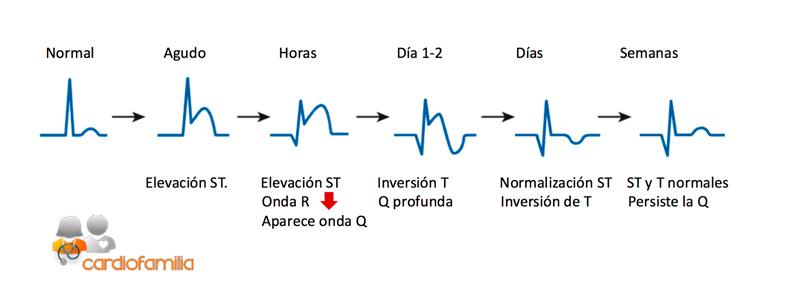 ascenso segmento ST cardiopatia isquemica cardiofamilia
