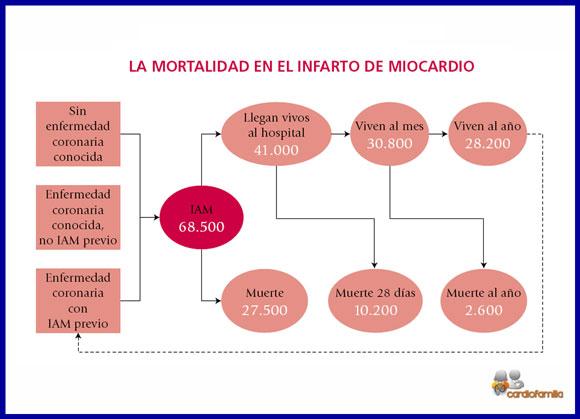 Introducción al infarto de miocardio
