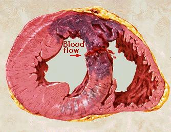 rotura tabique intraventricular