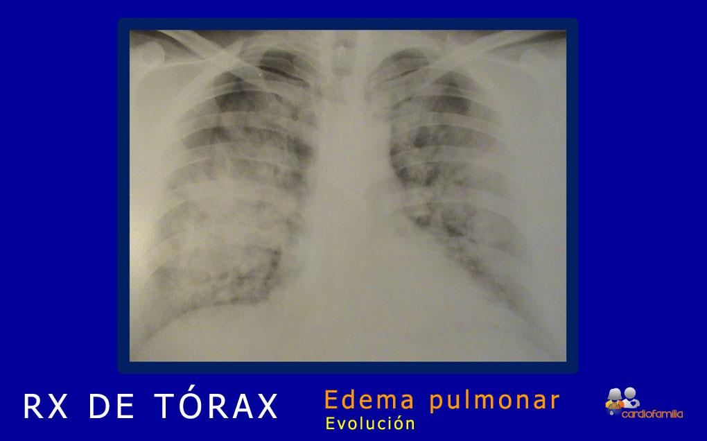 RXtorax edema agudo de pulmón