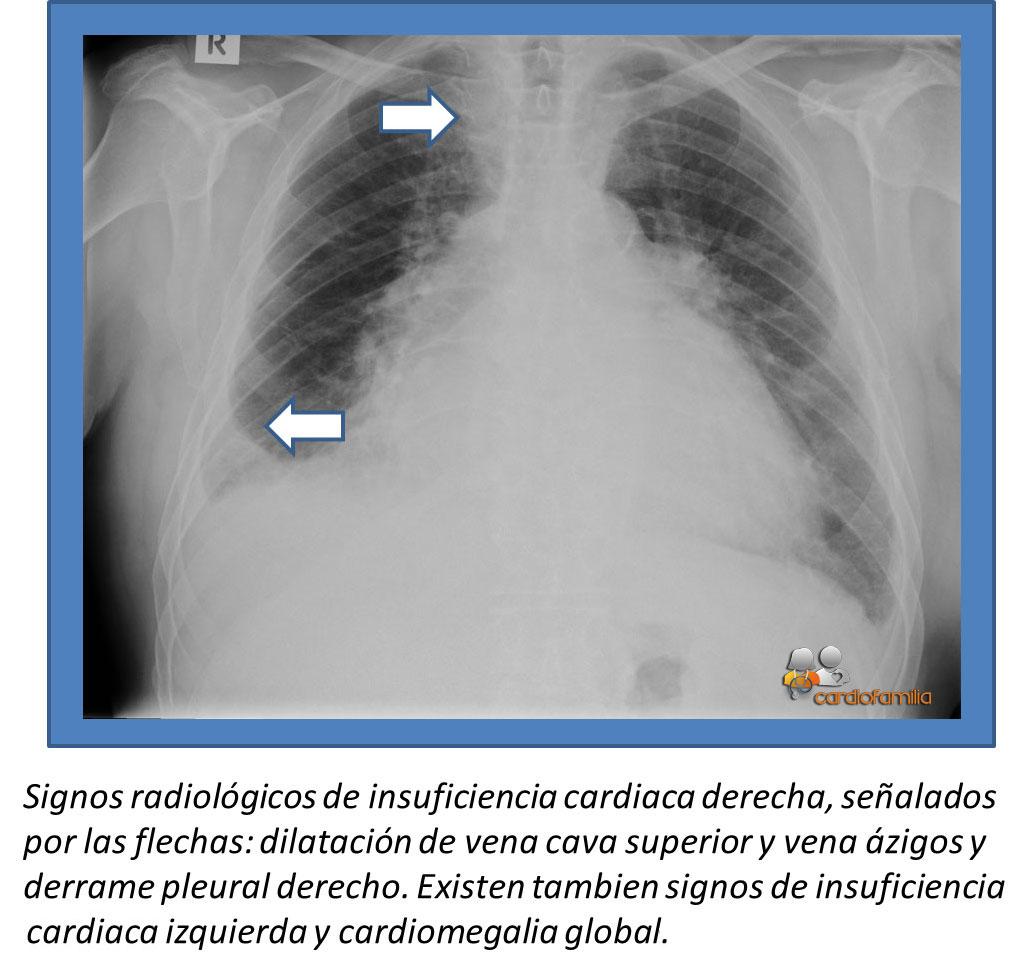 insuficiencia cardiaca derecha y derrame pleural