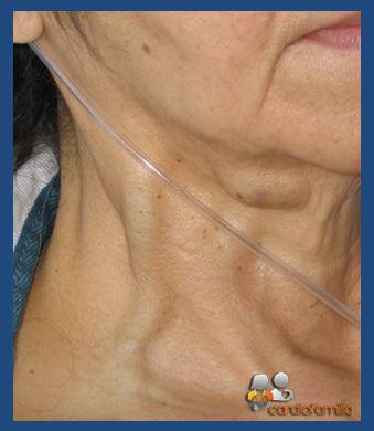 Ingurgitacion Yugular - Cardiologia Cardiofamilia
