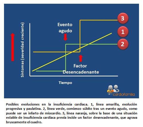 Formas presentacion insuficiencia cardiacax580