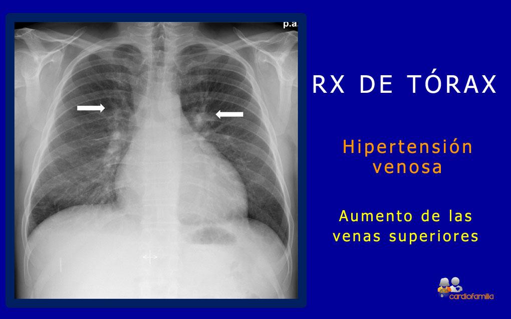 Rx torax redistribucion venosa cardiofamilia