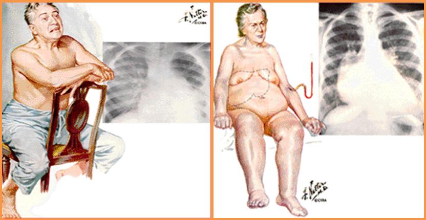Insuficienciacardiaca izquierda derechax580 cardiofamilia.png