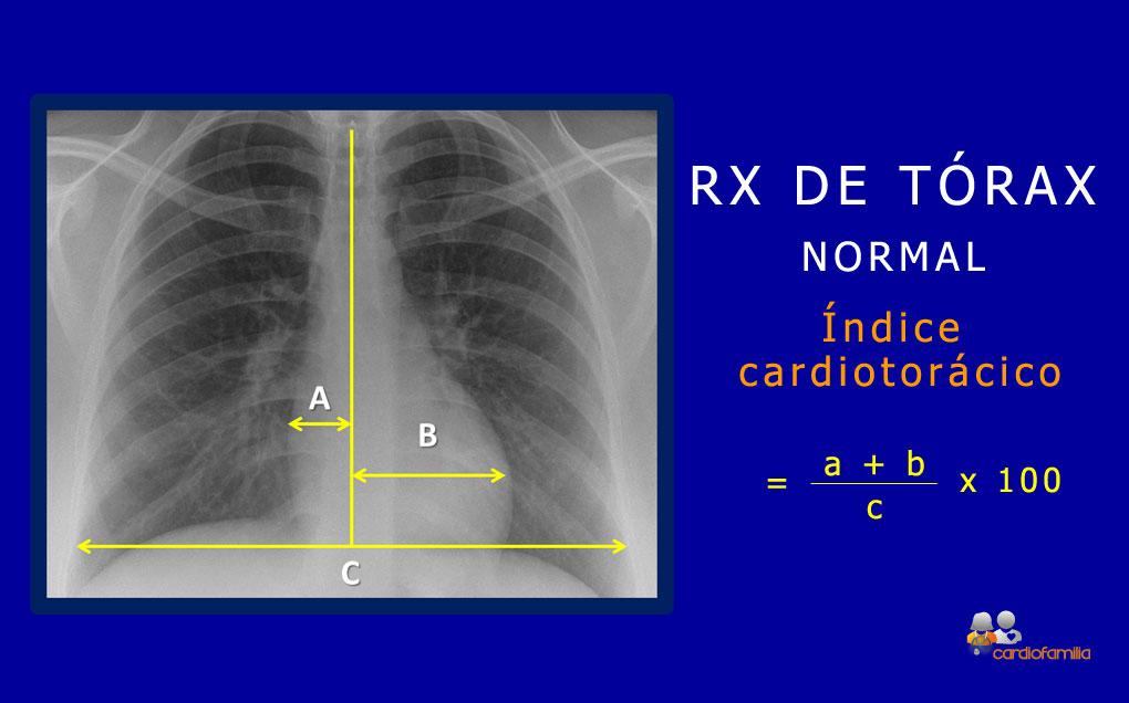 RX torax normal cardiologia cardiofamilia
