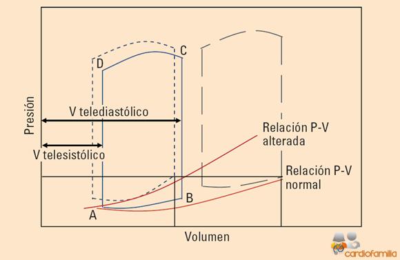 Diferencia entre volúmenes sistólicos y diastólicos