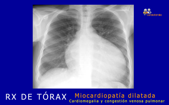 RXtorax miocardiopatia dilatadax580 cardiofamilia.org