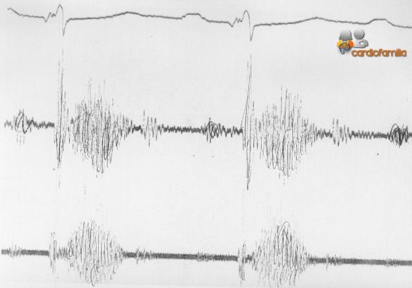 Auscultacion cardiaca mostrando cuarto ruido y foco www.sistolico cardiofamilia.org