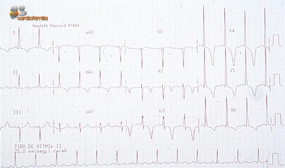 ECG miocardiopatia-hipertrofica