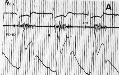 Miocardiopatia hipertrofica obstructiva
