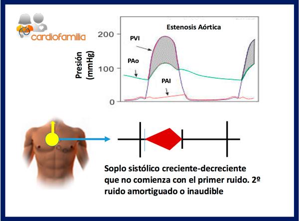estenosis aortica figura