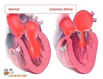 estenosis mitral cardiofamilia