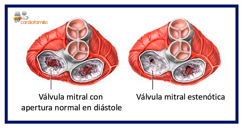 valvula mitral estenotica cardiofamilia