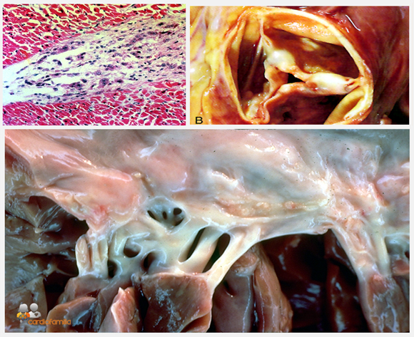 Nodulo_aschoff_valvulas_aortica_y_mitral_fiebre_reumaticax580_www.cardiofamilia.org
