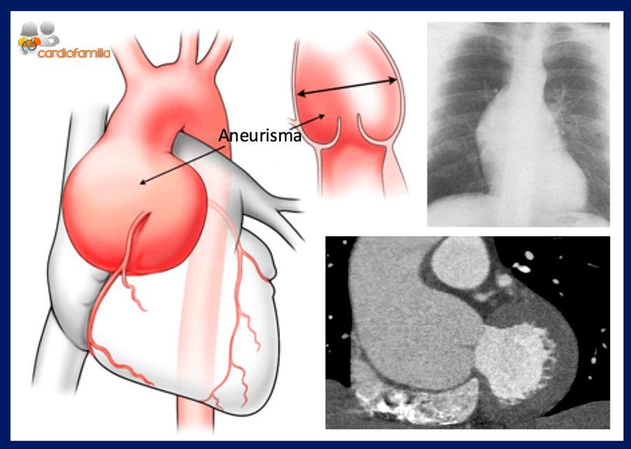 dilatacion raiz aortica cardiofamilia