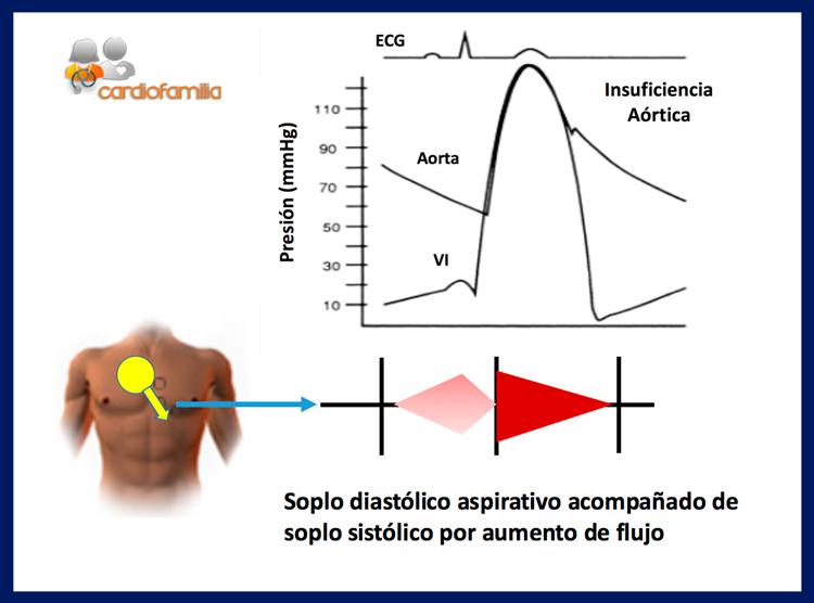 insuficiencia aortica soplo diastolico aspirativo acompañado de soplo sistolico con aumento de flujo cardiofamilia