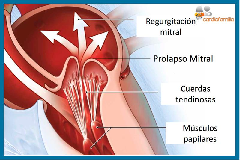 prolapso valvula mitral cardiofamilia