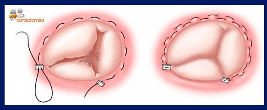 reduccion anillo tricuspideo cardiofamila