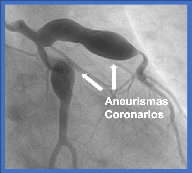 aneurisma coronario cardiofamilia