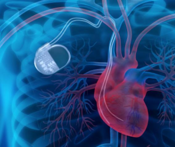 marcapasos cardiof